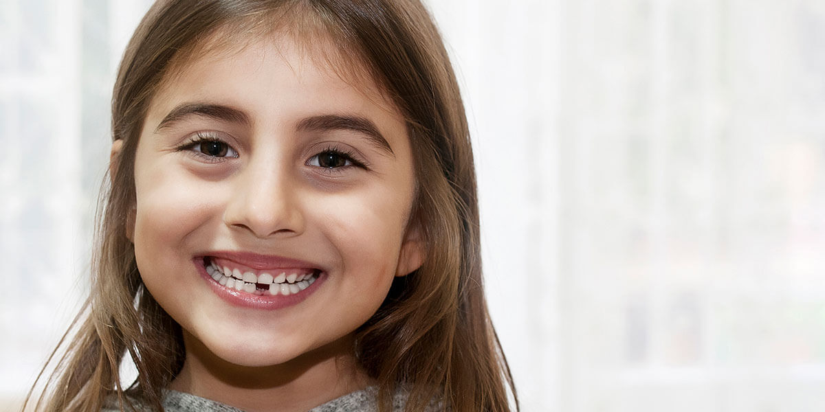 Girl smiling missing her front bottom tooth