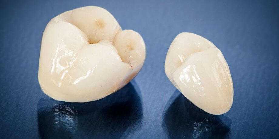The Pros and Cons of Dental Crowns