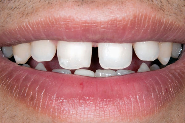 Gaps between teeth bite example
